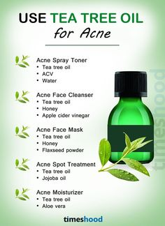 Use tea tree oil for acne and pimples. How to use tea tree oil to get rid of acne and pimples fast at home. Home remedies to remove face acne and pimples. Back Acne Treatment, Natural Acne Treatment, Natural Acne Remedies, Home Remedies For Acne, Huile Tea Tree, Tea Tree Oil For Acne, Tea Tree Oil Uses, Acne Moisturizer, Acne Oil