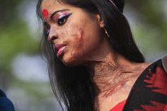 Hasina, a survivor of an acid attack, takes part in an awareness rally about the violence against women as they commemorate International Women's Day in Dhaka, Bangladesh on March 8. Photo by Andrew Biraj