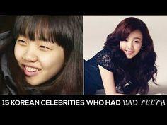 15 Korean celebrities who had bad teeth