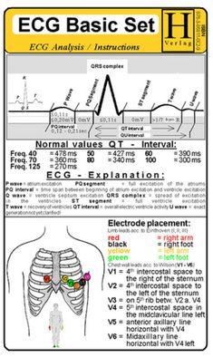 Basic EKG reading