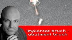 zum glück treten implantatbrüche bei diesem system nur bei einer bestimmten patientengruppe auf - starke presser / bruxierer. bei der mehrzahl der menschen sollte dieses system  halten, mehr wissen wir in 30 jahren ... Next Video, Videos, History, Face, Youtube, Knowledge, People, Historia, The Face