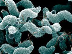 Esclerose múltipla pode começar no intestino | Scientific American Brasil | Duetto Editorial