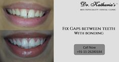 Fix Gaps Between Teeth with #Bonding at Dr. Kathuria's Multispeciality Dental Clinic #GapClosure