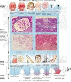 Post strep glomerulonephritis