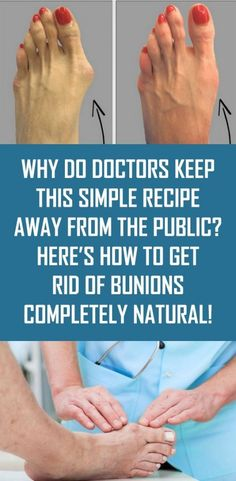 Bunions themselves are salt deposits. Also, angina, influenza, gout, bad metabol… - Health Remedies Health And Beauty, Health And Wellness, Health Tips, Health Care, Health Fitness, Simply Health, Beauty Skin, Fitness Tips, Health Goals