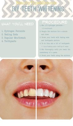 To make your teeth super white! REALLLY WORKS DID THIS FOR 3 DAYS STRAIGHT BEFORE MY WEDDING TURNED OUT PERFECT!! - Click image to find more DIY & Crafts Pinterest pins