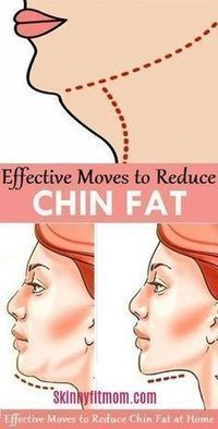 How To Get Rid of Double Chin and Face Fat Fast In A Week