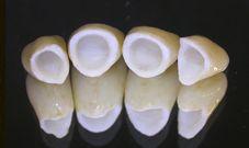 affordable dentures Chicago