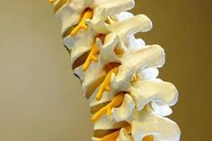 Which Foods Stimulate Bone Fusion After Back Surgery - Photo Scoliosis Surgery, Neck Surgery, Spine Surgery, After Surgery, Cervical Spinal Stenosis, Cervical Disc, Cervical Spondylosis, Acdf Surgery, Cauda Equina Syndrome