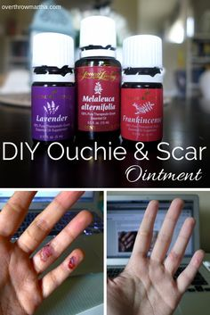DeAun Phillis - YL Distributor #2049764 for more info email me at mdphillis81@yahoo.com DIY Ouchie and Scar Reducing Salve