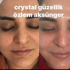 Crystal güzellik farkıyla