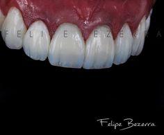 Cor... Forma... Reflexão de luz... Tridimensionalidade... Translucidez... Função...  FACETAS EM RESINA COMPOSTA de canino a canino (6 elementos) - TRANSFORME SEU SORRISO ...  (73) 3617-0707 #transformaçãodosorriso #bezerraodontologia #dentalphotographgroup #spaodontologico #spaday #odontologiadealtaperformance #lentesdecontatodental #facetasdeporcelana #facetasemresinacomposta #muitoalemdosdentes #odontologiaestetica #estetica #cirurgiaplastica #implantodontia #protese #reabilitaçãooral…