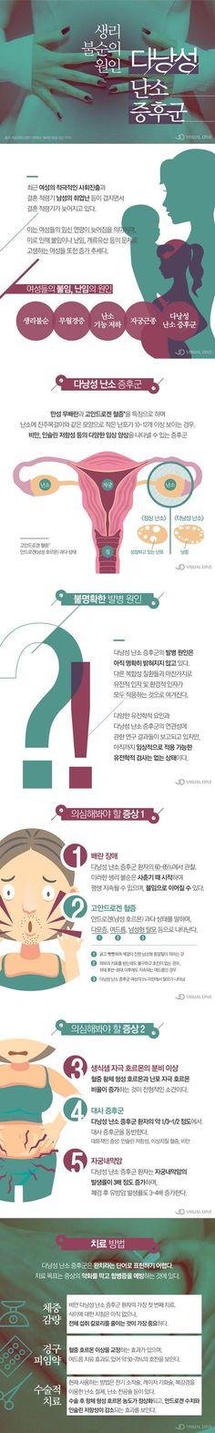 '다낭성 난소증후군' 증상과 치료법은? [카드뉴스] #syndrome / #cardnews ⓒ 비주얼다이브 무단 복사·전재·재배포 금지