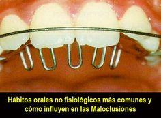 Hábitos orales no fisiológicos más comunes y cómo influyen en las Maloclusiones | OVI Dental