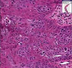 Histopathology Skin--Arsenical keratosis
