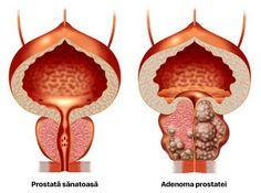 În SUA și în țarile occidentale toți bărbații tratează prostatita timp de 2-3 săptămâni, o dată în viață, o dată și pentru totdeauna. Healthy Beauty, Health And Beauty, Israel, Mafia, Diy And Crafts, Christmas Ornaments, Holiday Decor, Usa, Body Creams