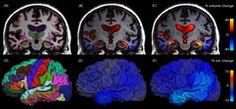EEG correlates in the spectrum of cognitive decline