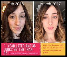 No makeup! No filter! All Rodan and Fields!!  Beautiful!! Visit my website or message me for details! http://mcosma.myrandf.com/