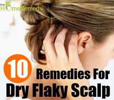 how to get rid of flaky scalp with braids