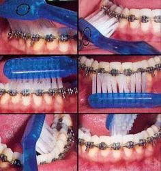 How To Clean Orthodontic Braces at Home! Pittsford Pediatric Dentis… How To Clean Orthodontic Braces at Home! Braces Food, Braces Tips, Dental Braces, Teeth Braces, Dental Care, Dental Health, Braces Smile, Cute Braces Colors, Getting Braces
