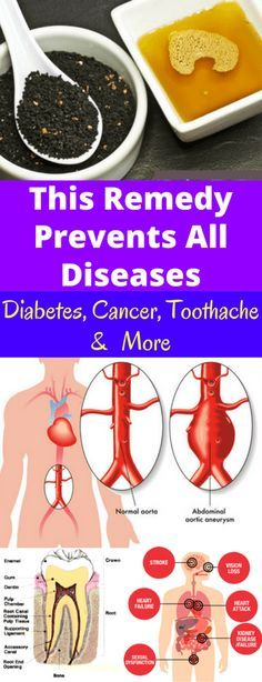 This Remedy Prevents All Diseases-Diabetes, Cancer, Toothache & More - Workout Hit