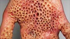 48 Best Trypophobia Images Trypophobia Phobias Microscopic