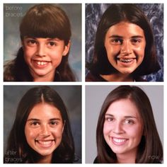 The Evolution of My Smile in School Pictures (Before, During, and After Braces)| The Braces Blog | Northern Colorado Orthodontics