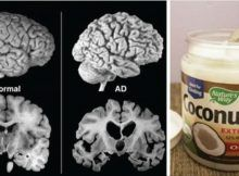 A Man Had 2 Tbsp of Coconut Oil 2 Times per Day for 2 Months. His Brain Changed https://ift.tt/2ujyqGe