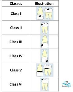 dental caries dental hygiene boards