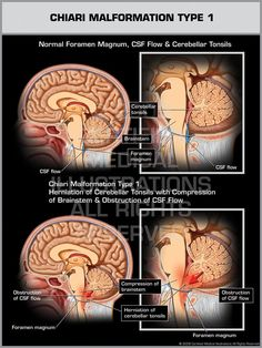 Chiari 1 Malformation   Brought to you by Dr Margaret Aranda.  / Please consider Following me on ***YouTube: https://www.youtube.com/channel/UCw9wH_GIMmPt3IEbWHVGpKg /or Twitter/@mediBasket
