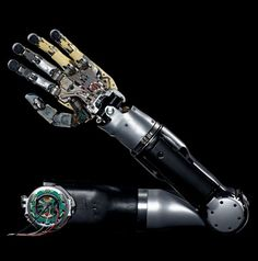 Mind-Controlled Artificial Arm in Human Testing