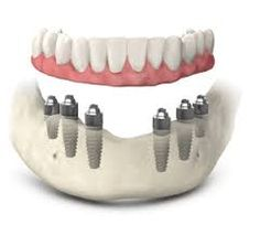 #dentalImplant