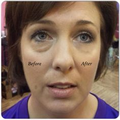 Dont think of yourself of having wrinkles? Instantly ageless works with under eye bags and puffy eyes too!