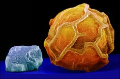 salt and pepper in Scanning Electron Microscope