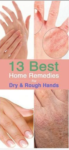 13 Best Home Remedies For Dry And Rough Hands – Toned
