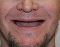 Smile Designs by Golpa - Golpa Dental Implant Center - Google+