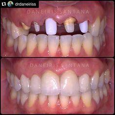 #COMERCIALES @drdaneiriss @drdaneiriss  Final! Colocacion definitiva de las coronas de Emax porcelana libre de metal. Fotografía tomada justo después de la cementación. @elvinsantos01 si que nos dio trabajo  #esteticasantana #sonrisasantana #estetica #armonia #textura #natural #simetria #equilibrio #dentista #dentist #odontology #tooth #teeth #veneers #corona #porcelana #Emax #crown #facetas #smile #smiledesing #3MZ350XT #ESPE by shayna_robles Our Dental Veneers Page…