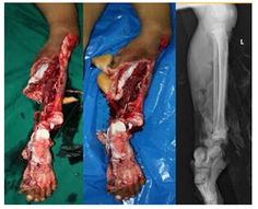 """This picture is a """"degloving injury"""" with orthopedic injury.  The flesh is peeled away by the bomb blast.  This soldier will be facing many surgeries and months of rehabilitation. My post explains..."""