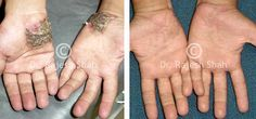 Psoriasis on hands images     Learn How to Cure Your Psoriasis Condition Quickly