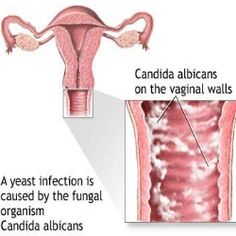 Yeast infection manifests in the form of oral thrush, yeast infection on the skin and vaginal yeast infection. Women mainly suffer from vaginal Candidiasis or Yeast Infection Home Remedy, Yeast Infection Symptoms, Yeast Infection Treatment, Garlic For Yeast Infection, Fungal Infection, Natural Home Remedies, Herbal Remedies, Natural Remedies, Health And Wellness
