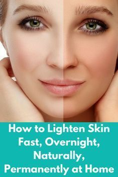 How to Lighten Skin Fast, Overnight, Naturally, Permanently at Home Today I will share permanent ski Teeth Whitening Remedies, Whitening Face, Natural Teeth Whitening, Whitening Soap, Korean Skin Whitening, Pole Dancing, Home Beauty Tips, Beauty Guide, Beauty Hacks