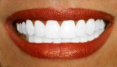 Avoir les dents blanches on dit toutes oui !! Mais comment faire pour avoir un sourire digne des stars hollywoodiennes.  Si de base vous n'avez pas les dents blanches...