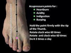 Heartburn/acupuncture