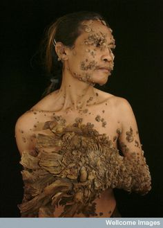 This is Dede, an Indonesian man who suffers from the human papilloma virus (HPV) and an under-performing immune system which has resulted in warts and root-like growths sprouting from his body. In 2007 the Indonesian government granted his free treatment to try and manage and improve his condition after he was featured in a television documentary.