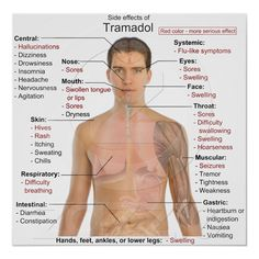 Side effects for Tramadol.