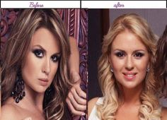 Pictures Of Anna Semenovich At The Time She Has Undergone Plastic Sugery She Is Far More Awesome Then - http://www.aftersurgeryjob.com/pictures-semenovich-undergone-plastic-sugery-awesome/