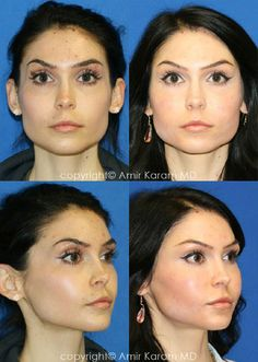 Consider a fat transfer procedure in San Diego - La Jolla California with Dr Karam. Information on fat transfer procedures, full face fat transfer, and micro fat transfers to help restore volume to the face. La Jolla California, Facial Aesthetics, Fat Transfer, Personal Style, Building, Face, Buildings, The Face, Faces