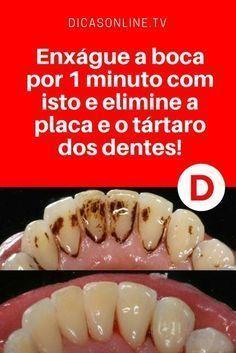Clarear dentes em casa   Este simples tratamento caseiro elimine a placa e o tártaro dos dentes. E ainda é um ótimo clareamento dental. Aprenda ↓ ↓ ↓