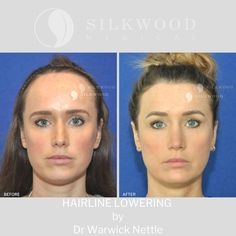 Forehead Reduction Surgery, Plastic Surgery Photos, Botox Fillers, Ageing, Total Body, Transformation Body, Hairline, How To Find Out, Reception