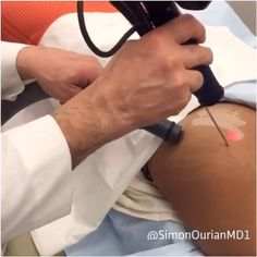 Regram from Doctor @simonourianmd1 Stretch mark removal. Thank you @lillyghalichi for allowing us to film this and posting it here.  Stretch Mark Removal by Coolbeam. Thank you #iamerica_mena allowing us to film this and sharing your beauty secrets  Treatment: Coolbeam laser skin resurfacing  Purpose: Removal of stretch marks  How it works: New production of collagen, and pigment ✏ Note: Individial results may vary Phone: 310-746-5233  Personalized Private Consultation Fee: $500  ...